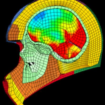 HNBi: Biomechanik des Systems Schädel-Hirn-Halswirbelsäule